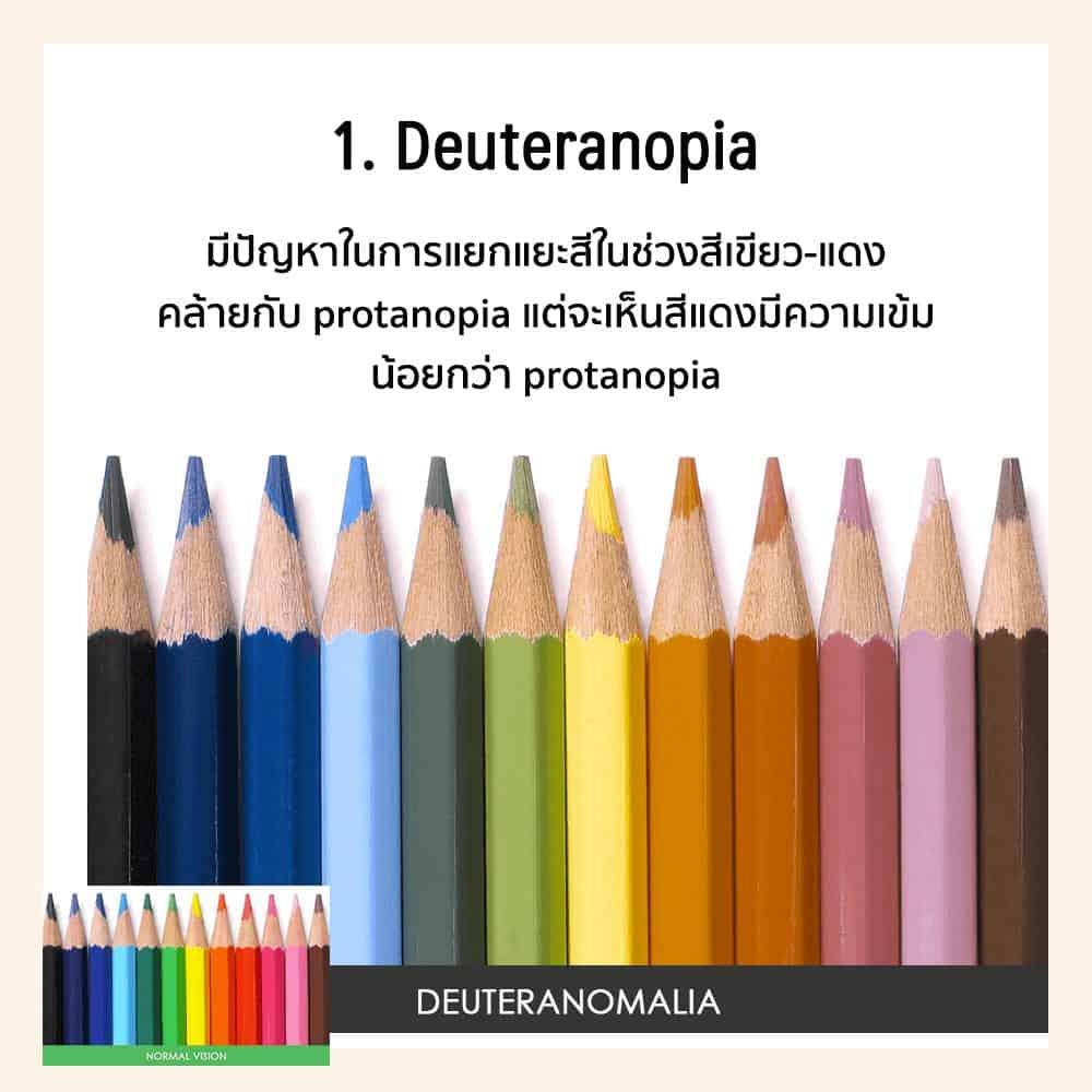 Deuteranopia คือ